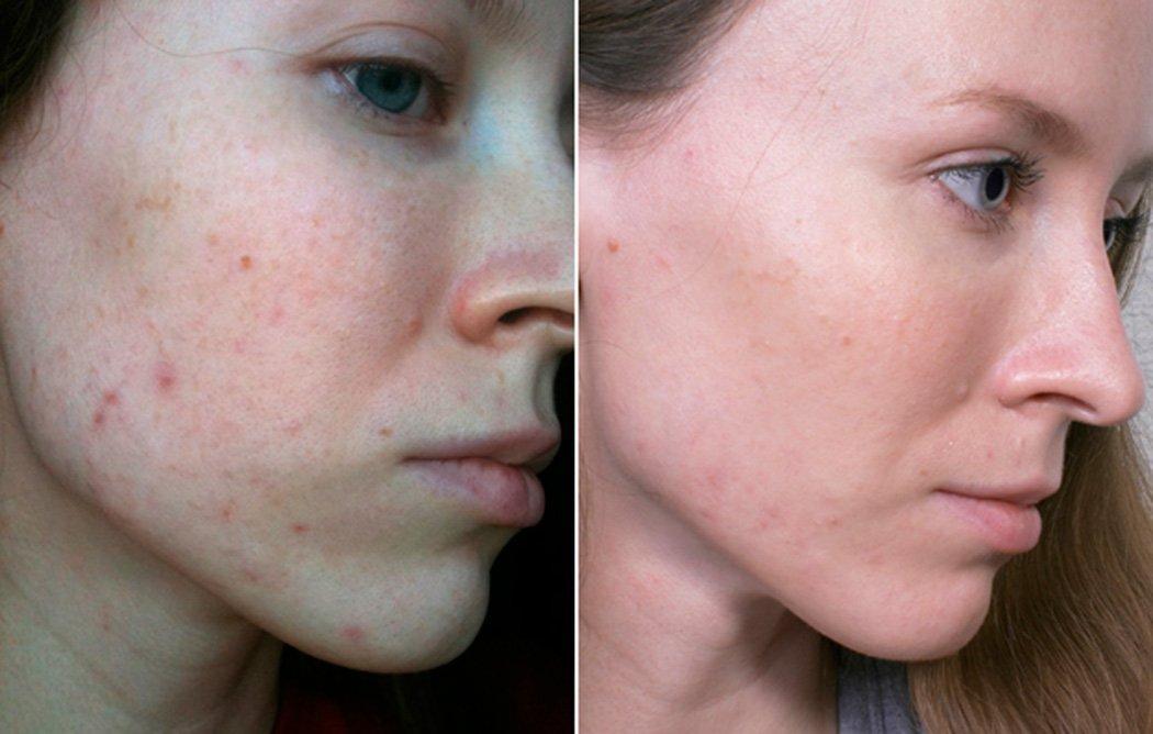 anons-acne