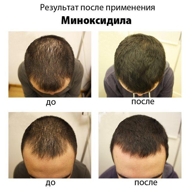 Minoxidil для роста волос