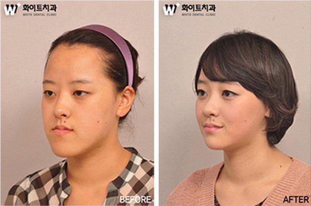 korean-plastic-surgery-11
