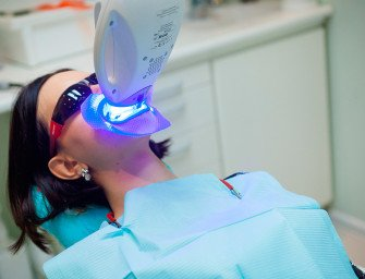Отбеливание зубов Philips Zoom. Зубы Дарьи до и после