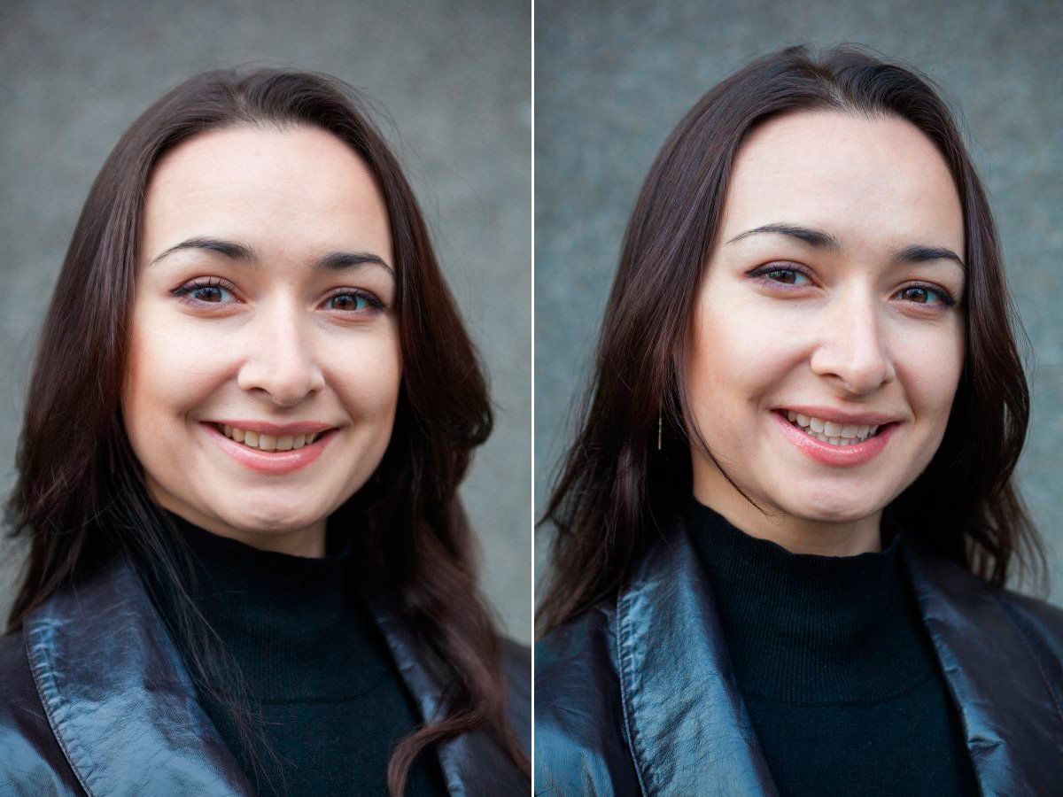 dina-face-teeth-before-and-after