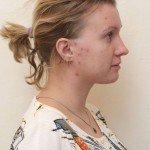 Катя до начала лечения роаккутаном в ноябре 2014 года