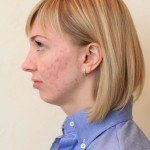 Юля перед окончанием лечения, июнь 2015