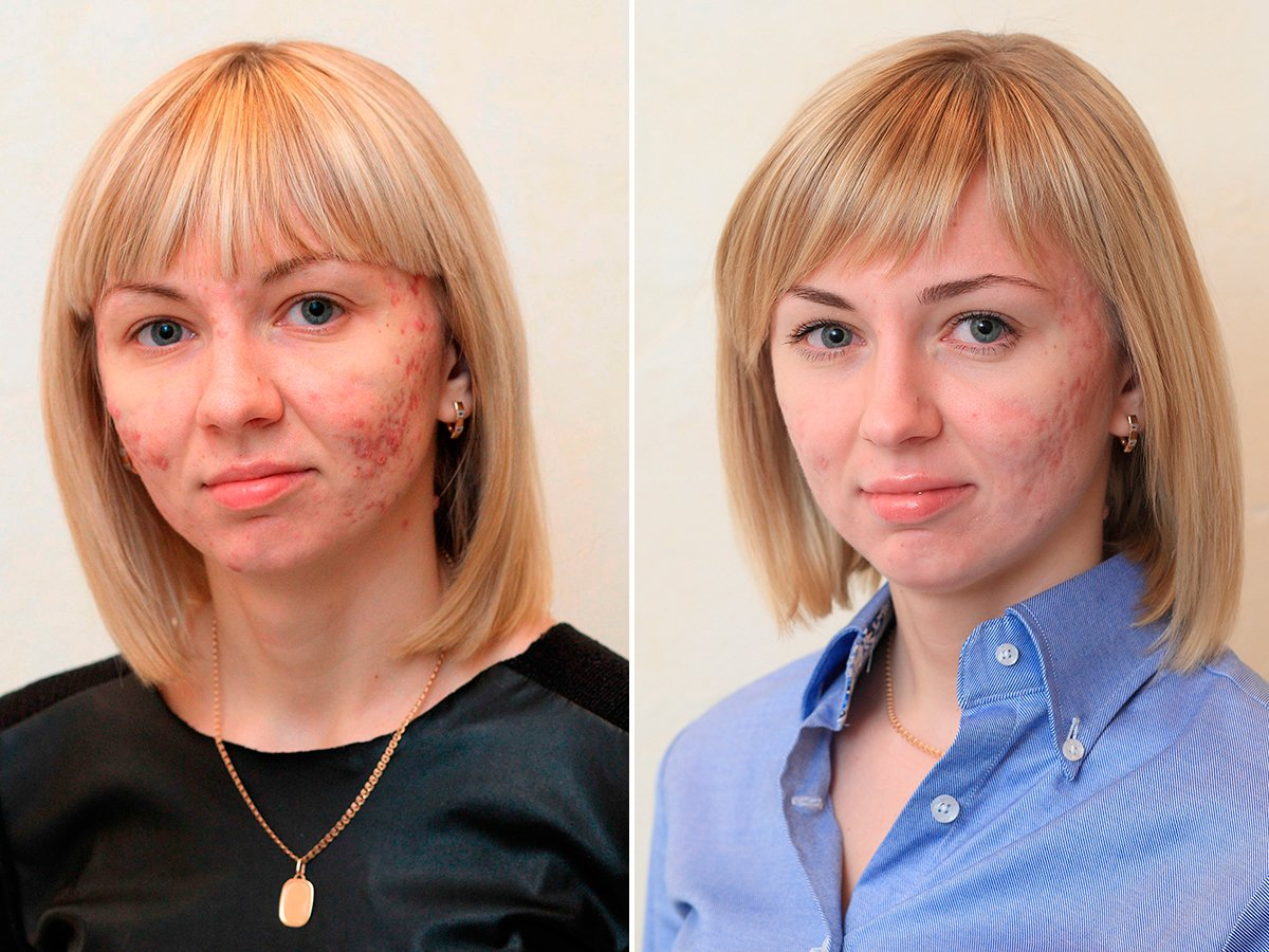 acne-before-and-after-julia-final
