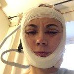 первый день после операции