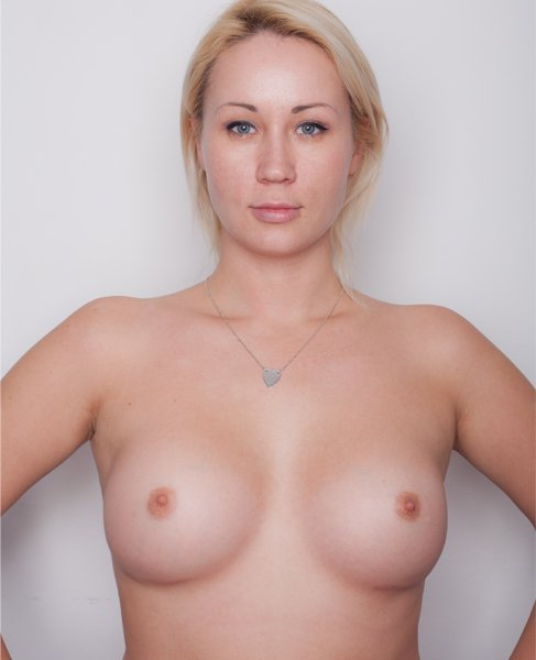 beauty-doctor-mammoplastica-mentor-itog1