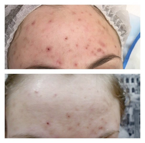 oxygena-before-and-after-one-procedure-2