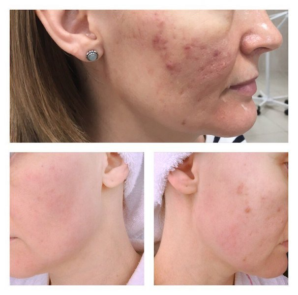 oxygena-before-and-after-one-procedure-3