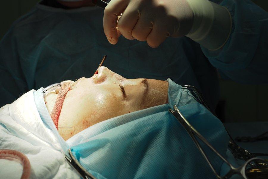 операция по ринопластике доктор Шихирман до и после