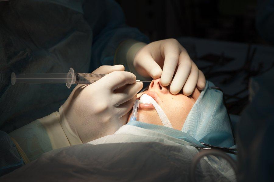 ринопластика Шихирман rinoplastika dr Shihirman (18 of 38)