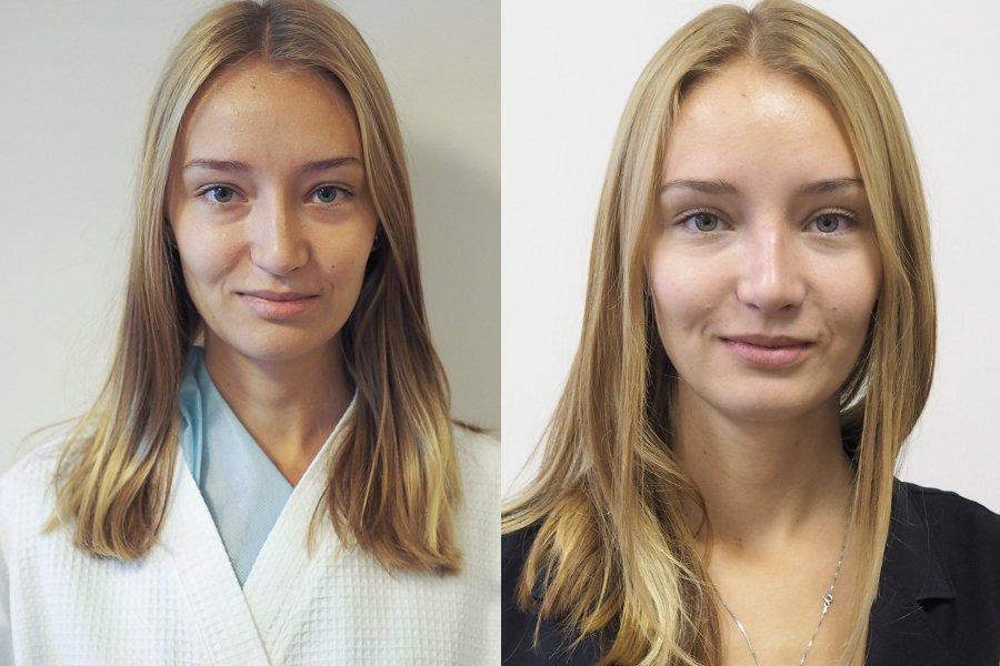 ринопластика Шихирман rinoplastika dr Shihirman до и после