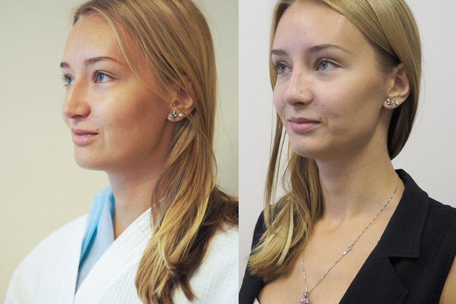 rinoplastika dr Shihirman до и после