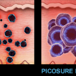 picosure_2_versus_qswitched_stills1-1