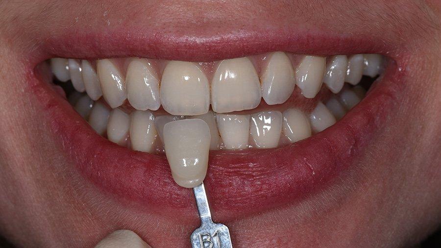 отбеливание зубов insmile
