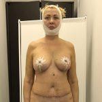 Во время первой перевязки Елене было не рекомендовано подниматься без компрессионного белья. Забегая вперед, показываем, как она выглядела спустя две недели после операции.