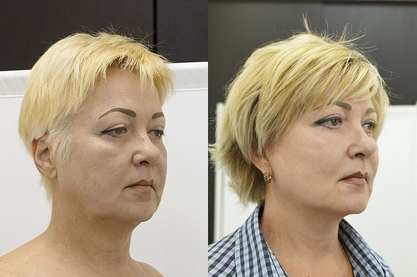 face-side-beforeandafter