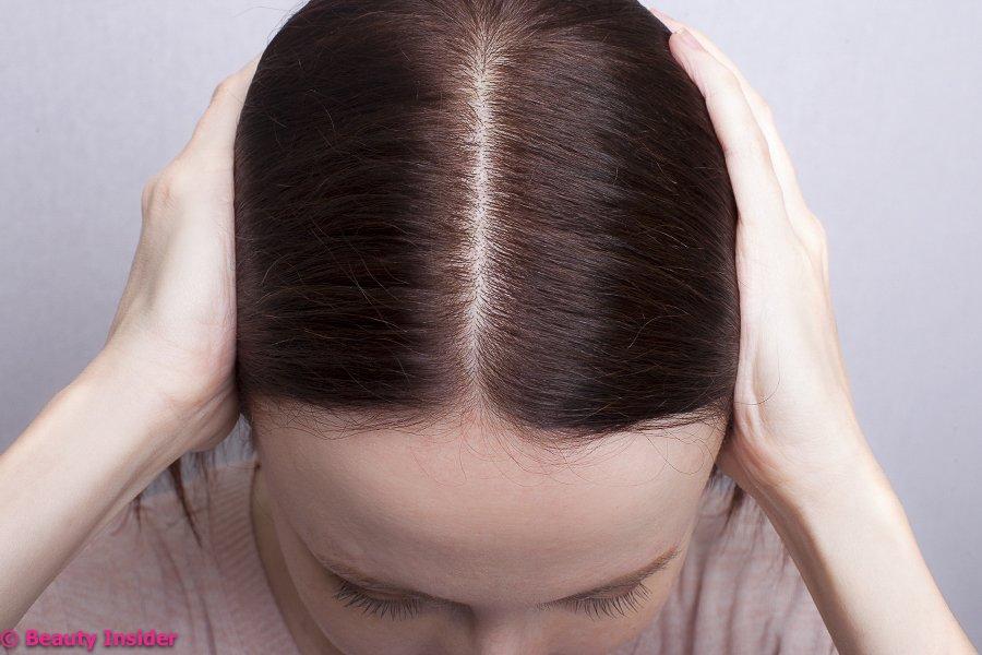 Сильно выпадают волосы после похудения