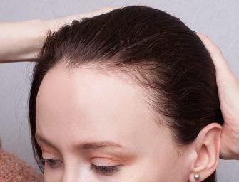 «Сатура роста»: как вырастить волосы заново