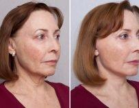 Подтяжка лица: мама Юли через полтора месяца после операции