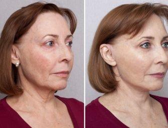 Подтяжка лица: Юлина мама через три месяца после операции