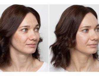 Как скрыть пигментацию и выровнять тон лица с помощью цветных корректоров?