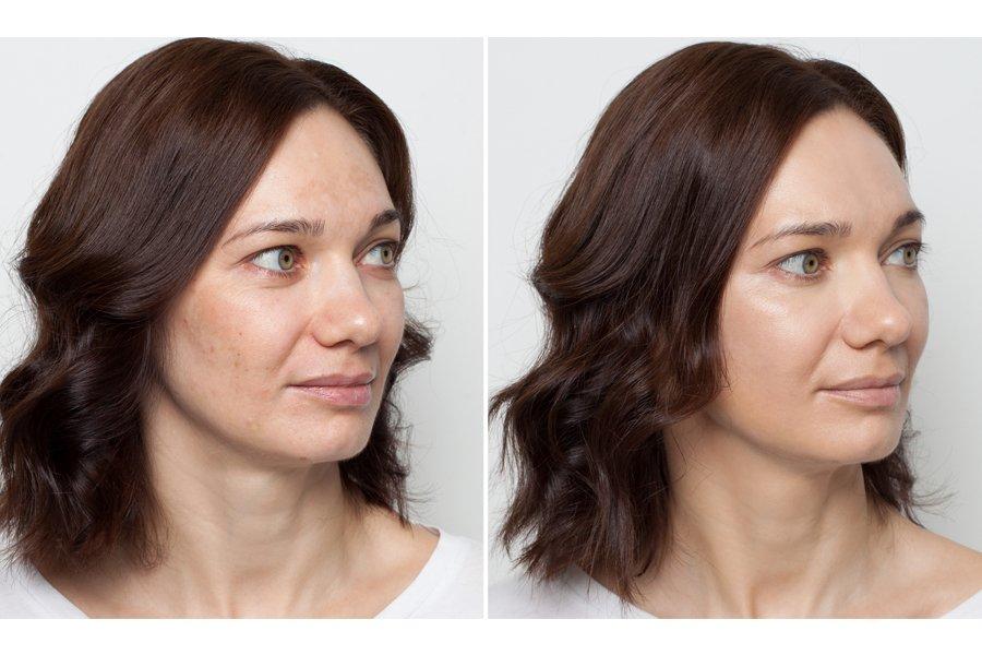 """Слева - """"голое"""" лицо, справа - ЕЕ-крем, цветной корректор, тональный крем"""