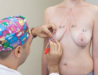 Радиочастотная подтяжка груди: неудобные вопросы хирургу