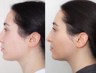 Ринопластика у доктора Шихирмана: репортаж из операционной и новый нос Карины