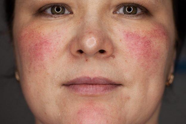тональный крем при куперозе на лице какой