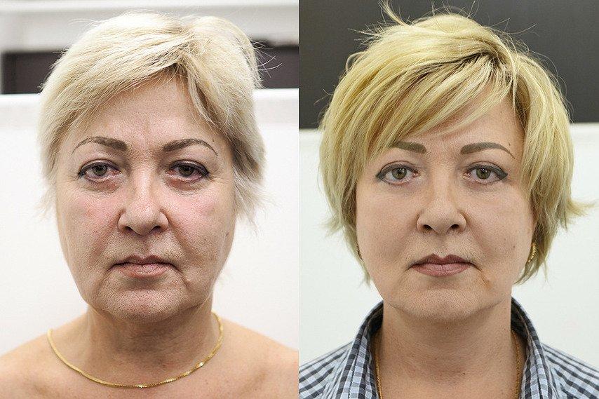 face-front-beforeandafter